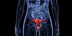 Cancer of Uterus