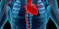 Heart surgery in Israel